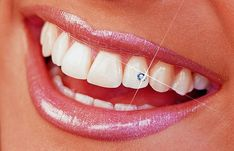 45 Amazing Teeth Jewelry Pieces For Extra Beauty  - Let your dental jewelry enhance your smile, add some sparkle, twinkle and glamor to your teeth and also make them appear fun with jewelry. Here, when ... -  diamand-zuby_int .