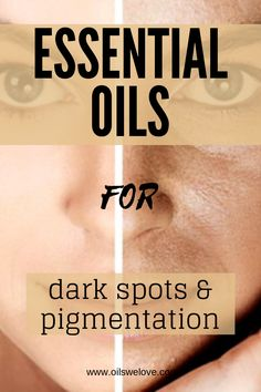 Essential oils for hyperpigmentation and dark spots. List of essential oils that are especially powerful in terms of clearing hyperpigmentation because of their skin lightening properties Lighten Dark Spots, Dark Spots On Face, Lighten Skin, Best Oil For Skin, Castor Oil For Skin, Easential Oils, Essential Oils For Face, Dry Skin On Face, Skin Spots