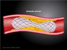 Angioplastia arterial com implante de stent - www.drcardozo.com.br - YouTube