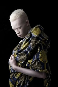 by Justin Dingwall [albino male]