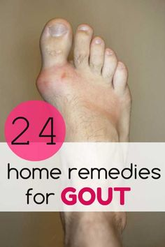 gout treatment vitamin c gout hip fracture gout natural cures