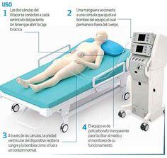 El diseño del corazón artificial fue de Emilio Sacristán Rock, investigador de la UAM-Iztapalapa. Los primeros usuarios serán pacientes que esta...
