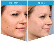 """Are you annoyed by the black moles and skin tag on your body? Check out this years Best formulation to remove these mole. with this 3 step process. Read the Derma Correct Reviews. Remove ugly looking skin tag and mole with """"Derma Correct"""" Formulated to remove your mole and skin tag without any painful process. Derma Correct is is formulated to remove your skin tag & mole without any expensive treatment. Just apply it on the mole part and it would fall off by itslef. Essential Oil Distiller, What Is Healthy, Tag Remover, Dark Spots On Skin, Skin Tag Removal, How To Remove, How To Apply, Blood Vessels, Skin Problems"""