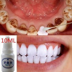 Buy Magic Natural Teeth Whitening Powder Pearl Tooth Brushing Powder Physical Teeth Whitener Detoxifying Whitening Oralh Dental Oral Hygiene at Cute - Beauty Shopping Teeth Whitening Remedies, Charcoal Teeth Whitening, Natural Teeth Whitening, Invisalign, Beauty Hacks That Actually Work, Coffee Staining, Tea Stains, Soft Lips, Oral Hygiene