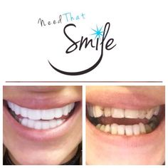 MORE AND MORE HAPPY CUSTOMERS LOVING THEIR VENEERS :)  ---------------------------------- Veneers come in 16 different a shades --------------------------------- They clip over your natural teeth -------------------------------- Look after them and They will last up to two years :) --------------------------------- Order today to receive in 5-7 working days -------------------------------- Prices- Upper 300 Lower 300 Upper and lower 400 -------------------------------- WANT THEM ? Please…