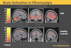 A brain scan showing the difference in brain activity between a fibromyalgia patient compared to a healthy individual.