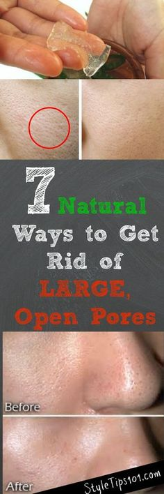 We've compiled 7 natural ways to get rid of open pores so you can finally have that perfect skin you've always wanted! Homemade Skin Care, Homemade Beauty, Skin Tips, Skin Care Tips, Get Rid Of Pores, Minimize Pores, Beauty Care, Beauty Tips, Beauty Secrets