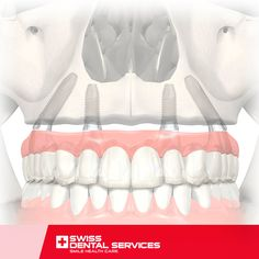 The All-on-4 procedure makes it possible to restore the smile of patients who have severe maxillary atrophy and whose dentition no longer exists. This treatment is performed through the placement of Dental Implants, without needing bone grafts. Book a consultation now and find out if you are eligible for this type of treatment.