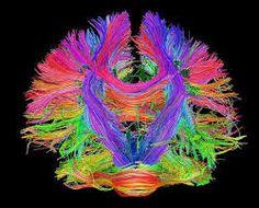 Resultado de imagen para Vernon Mountcastle y la organización cerebral