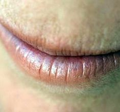 Chapped Lips: Here are 10 Home Remedies For Chapped Lips. chapped lips are gross and hurt. i love these remedies -lily Beauty Care, Diy Beauty, Beauty Hacks, Beauty 101, Beauty Ideas, Personal Beauty Routine, Beauty Routines, Home Health Remedies, Natural Home Remedies