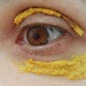 How To: Get Rid of Dark Under Eye Circles - Under Eye Wrinkles Eye Circles, Dark Circles, Dark Circle Remedies, Dark Under Eye, Eye Wrinkle, Wrinkle Creams, Homemade Face Masks, Wrinkle Remover, Prevent Wrinkles