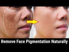 Cum să eliminați pigmentarea feței în mod natural, scăpați de petele întunecate de acasă - YouTube Black Patches On Face, Black Spots On Face, Dark Spots, Skin Glow Tips, Blemish Remover, How To Grow Eyebrows, Face Massage, Beauty Tips For Skin, Beauty Tips