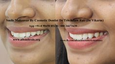 Dr Trivikram (Dr Vikram),an expert cosmetic dentist in Bangalore offers smile makeovers. This treatment is not a surgery and your teeth can be straightened without braces/orthodontic treatment and can be finished in just 5-7 days. Read more at http://www.allsmilesdc.org/cosmetic-dentistry-faqs/ ALLSMILES - located only at - N0.64, SHANKAR MUTT MAIN ROAD BASAVANAGUDI.(no other branches). BANGALORE-560004.KARNATAKA. INDIA.   PH +91-0- 98450 85230.080-26673439