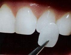 ¿Quieres mejorar tu estética dental? ¿Lucir una sonrisa espectacular? Lo que necesitas es la colocación de carillas dentales, unas finas láminas que recubren la parte visible del diente.  Aquí te explicamos como es el proceso de colocación, cuánto duran y su cuidado.