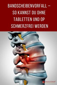 Diagnosis of herniated disc: Pain-free without tablets and surgery Fitness Workouts, Ace Fitness, Fitness Goals, Fun Workouts, Fitness Tips, At Home Workouts, Health Fitness, Workout Exercises, Training Motivation