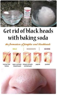Get rid of Blackheads with Baking Soda DIY - Easy Health Tutorials