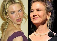 Renee Zellweger Before And After In 2019 Plastic
