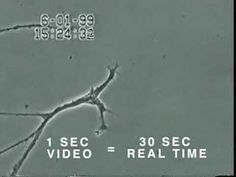 How Mercury Causes Brain Neuron Damage: University of Calgary Faculty of Medicine, Department of Physiology and Biophysics