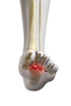Morton's Neuroma, Hammer Toe, Mike Trout, Foot Pain, Plantar Fasciitis, Celebrity Feet, Surgery, It Hurts, Houston