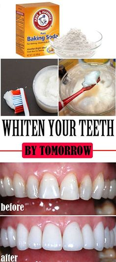 9 DIY Hacks to Naturally Make Your Teeth Whiter Than They've Ever Been Before