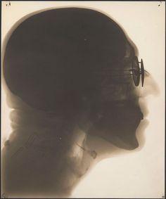 Dr. Dain L. Tasker, Self-portrait, radiograph, circa 1930s