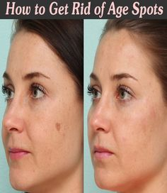 How to Get Rid of Age SpotsGiven below are 7 Remedies to Reduce Benign Age Spots. Lemon Juice Hydrogen Peroxide Aloe Vera Apple Cider Vinegar and Onion Red Currants Dandelion Root