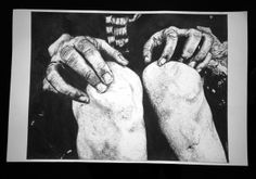 Hands / knees / scars