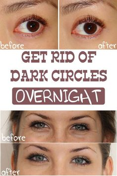 Dark circles can be caused by many factors, but the most common are hormonal imbalance, kidney problems and lack of sleep. Get rid of them overnight!