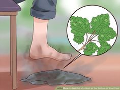 How to Get Rid of a Wart at the Bottom of Your Foot: 12 Steps Planters Wart, Warts Remedy, Warts On Face, Get Rid Of Warts, Layers Of Skin, Normal Skin, Skin Care Tips, Remedies, Knowledge