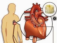 Transcatheter Heart Valve Market: Europe Industry Analysis, Size, Share, Growth, Trends and Forecast 2007 To 2020