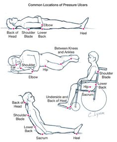 Common locations of pressure ulcers, which is why I'm so anal about repositioning people!