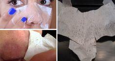 Faites vos propres patchs pour les pores – éliminez les points noirs et débarrassez-vous des pores dilatés et bouchés