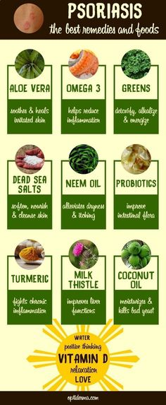 Arthritis Remedies Hands Natural Cures - The best foods and natural remedies for psoriasis. For more info about psoriasis and how to treat it naturally, check this page! www.optiderma.com... - Arthritis Remedies Hands Natural Cures #PsoriasisArthritis