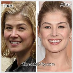 #RosamundPike #PlasticSurgery before and after photos revealed! http://shar.es/1Wilgf