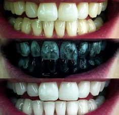 Charcoal Teeth Whitening Toothpaste, Tansmile Natural Activated Charcoal Toothpaste Mint Fluoride Free Toothpaste Bad Breath and Teeth Stains Remover Toothpaste (Pack of Teeth Whitening Remedies, Natural Teeth Whitening, Whitening Kit, Activated Charcoal Teeth Whitening, Charcoal Toothpaste, Tooth Sensitivity, Teeth Implants, Dental Implants, Dental Surgery