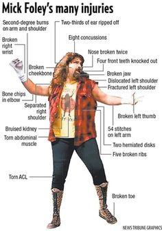 Broken Toe, Broken Ribs, Shoulder Bones, Mick Foley, Front Teeth, Arm Muscles, Burns, Wwe, Wrestling