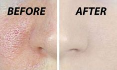 Pores are small openings on the skin which allow it to breathe.It is almost impossible to see them with the naked eye, but may grow in size as we get older. Enlarged pores look unpleasant and can ruin your appearance. Skin Toner, Oily Skin, Skin Serum, Apple Cider Vinegar For Skin, Minimize Pores, Skin Care Remedies, Eczema Remedies, Natural Remedies, Homemade Face Masks