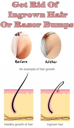 What is ingrown hair? Ingrown hair is a condition where the hair grows sideways into the skin. The condition is widespread in people who have curly or coarse hair. DIY Home Remedy For Ingrown Hair. Ingrown Hair Remedies, Ingrown Hair Removal, Ingrown Hairs, Beauty Guide, Beauty Secrets, Beauty Hacks, Beauty Care, Beauty Skin, Hair Beauty