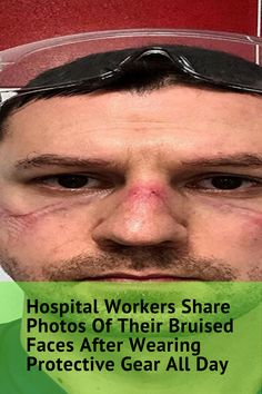 Health Care Workers Share Photos Of Their Bruised Faces After Wearing Protective Gear All Day - Ihealthynews Cute Animals Images, Cute Animal Videos, Cute Baby Animals, What Makes You Happy, Are You Happy, Dog Clicker Training, Dog Funnies, Share Photos, People In Need