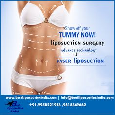 Vaser liposuction – A glance at the procedure #liposuctiondelhi, #liposuctioncost, #liposuctionindia