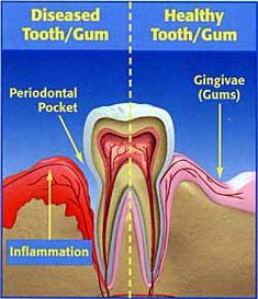 Six great reasons to have your teeth cleaned. 2. To keep your teeth  As gum disease advances, the pockets grow deeper and plaque moves further down the tooth root, destroying supporting bone.