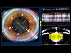 Femtofaco - Tratamiento con láser femtosegundo | Clinica Rementeria | http://www.cirugiaocular.com