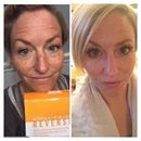 I am sorry, tell me again why you're still waiting?!🤔  If you can't afford peels, skin pen, or microdermabrasion treatments why don't you try this first?! It works!!  Check out Siobhan Skabeikis......what do you notice first, her lashes or her skin? Siobhan is KILLING it with R+F's Reverse regimen - Lash Boost combo! #TheAListLife
