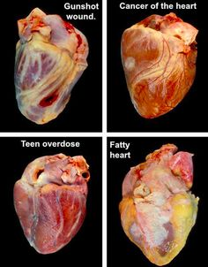 Pathology of the heart                                                                                                                                                                                 More