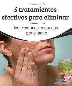 5 tratamientos efectivos para eliminar las cicatrices causadas por el acné El acné es uno de los problemas estéticos que más afecta a las personas en todo el mundo, principalmente en la etapa de la pubertad.