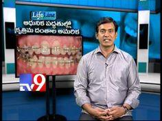 Modern methods of Artificial Teeth setting - Lifeline