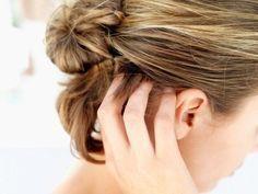 Le traitement contre les poux 5 Façons d'utiliser l'huile de coco pour des beaux cheveux sains