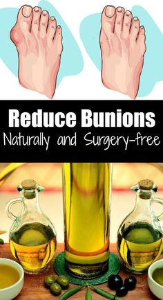 Bunions can be painful. I know many women who suffer from this painful and irritating condition. Honestly, I understand them. Nowadays, it seems like high heels are the standard for everything. And wearing high heels Bunion Remedies, Foot Remedies, Health Remedies, Natural Remedies, Herbal Remedies, Health Benefits, Health Tips, Health And Wellness, Health Care