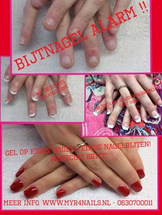 Wie wilt er van die lelijke afgekloven nageltjes af...  Bel voor meer info 06700011 of kijk op www.myr4nails.nl  / Facebook : Myrfor Nails