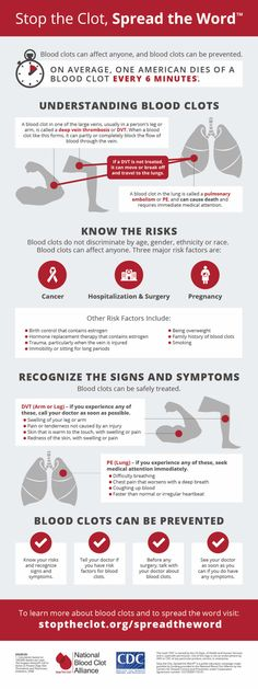 Signs and Symptoms of a blood clot and how you can prevent getting one. www.dandelionmoms.com